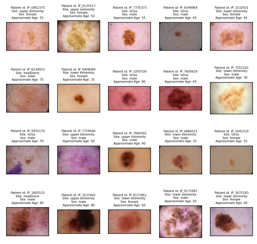 SIIM-ISIC Melanoma Classification Kaggle competition dataset